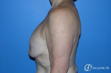 Denver Breast Revision 7990 - Before Image 3