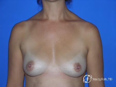 Denver Breast Augmentation 29 - Before Image 1