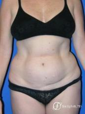 Denver Tummy Tuck 44 - Before Image