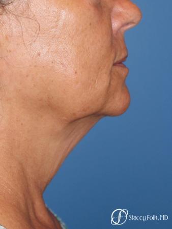 Denver Facial Rejuvenation Face Lift, Fat Injection, Laser Resurfacing 7123 - Before Image 1