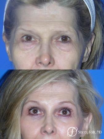 Denver Brow Lift and Upper Blepharoplasty 7161 - Before Image 1