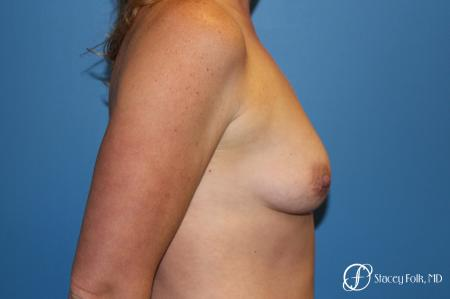 Denver Breast augmentation using Sientra textured anatomic implants 5578 - Before and After Image 3