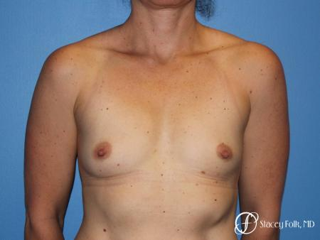 Denver Breast Augmentation 6611 - Before Image