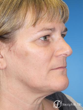Denver ThermiTight Neck and Face 9392 - Before Image