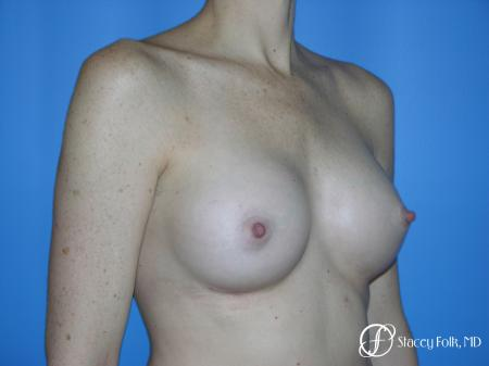 Denver Breast Augmentation 3633 -  After Image 2