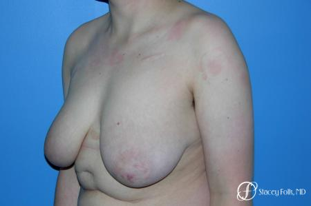 Denver Female to Male Top Surgery 5257 - Before and After Image 4