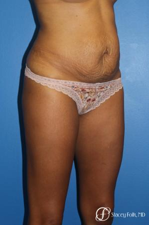 Tummy Tuck (Abdominoplasty) - Before Image 2