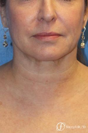 Denver Facial Rejuvenation 9894 - Before and After Image 2
