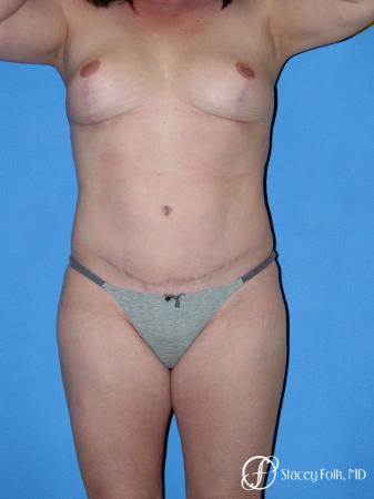 Denver Mommy makeover, breast reduction, abdominoplasty, liposuction 5355 -  After Image 1