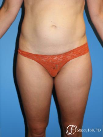 Denver Tummy Tuck - Abdominoplasty 8266 - Before Image 1