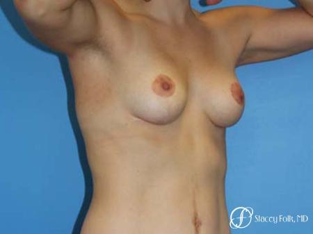 Denver Breast Lift - Mastopexy 7981 -  After Image 2