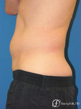 Denver Coolsculpting 5970 - Before and After Image 3