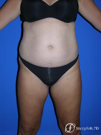 Denver Tummy Tuck - Abdominoplasty 53 - Before Image 1