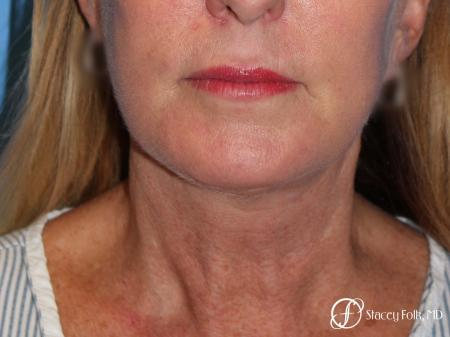 Denver Facial Rejuvenation 7916 -  After Image 1