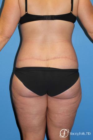 Denver Body Lift Belt lipectomy & liposuction 5264 -  After Image 2