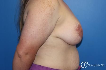 Breast Lift (Mastopexy) - Before and After Image 3