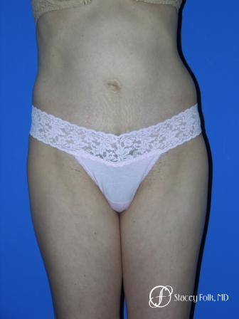 Denver Tummy Tuck 20 -  After Image 1
