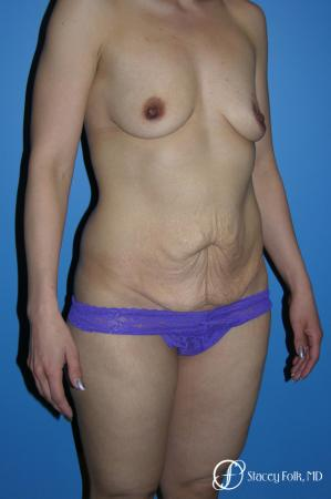 Denver Mommy makeover with a breast augmentation mastopexy and abdominoplasty 5352 - Before Image 2
