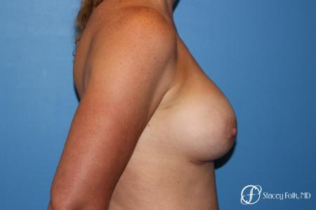 Denver Breast augmentation using Sientra textured anatomic implants 5578 -  After Image 3