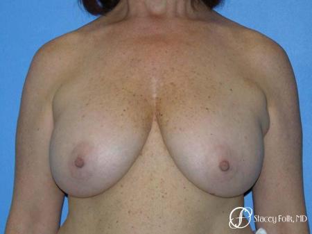 Denver Breast Lift - Mastopexy 7977 - Before Image 1
