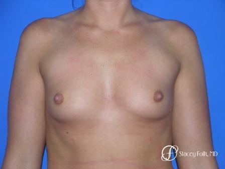 Denver Breast Augmentation 958 - Before Image 1