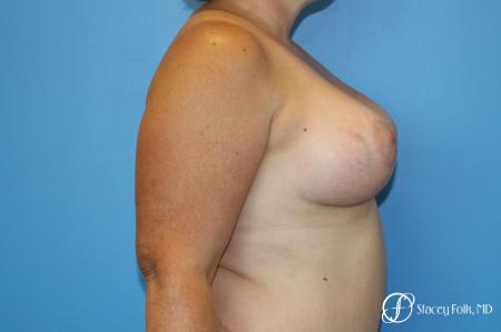 Denver Breast Augmentation Mastopexy 8507 -  After Image 5