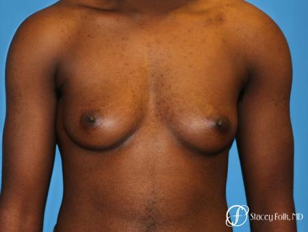 Denver FTM Female to male top surgery using gynecomastia technique 5497 - Before Image