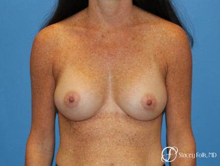 Denver Breast Augmentation using Sientra Silicone Gel Breast Implants 9362 -  After Image 1