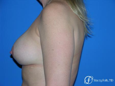 Denver Breast Lift and Augmentation 4558 -  After Image 3