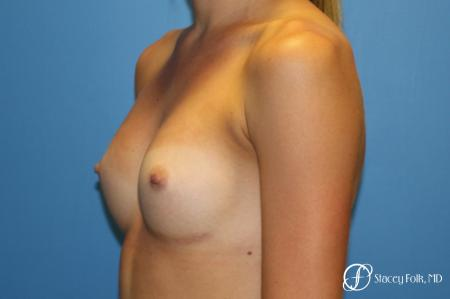 Denver Breast Augmentation with Sientra Breast Implants 9094 -  After Image 2
