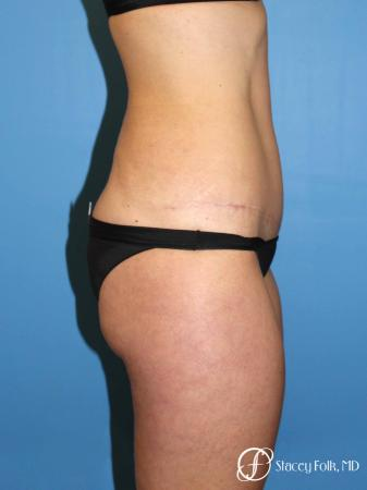 Denver Tummy Tuck Abdominoplasty and liposuction 4880 -  After Image 3