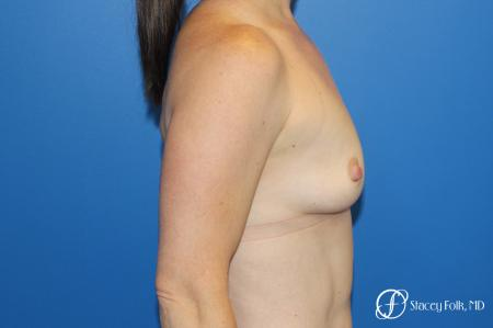 Breast augmentation with Natrelle Inspira breast implants - Before Image 3