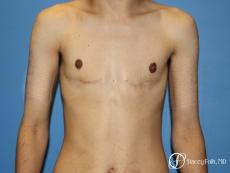 Denver FTM Female to male top surgery 5105 - After Image
