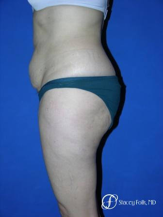 Denver Tummy Tuck 34 - Before Image 2