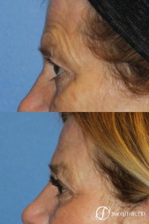 Denver Browlift and Blepharoplasty 11238 - Before and After Image 2