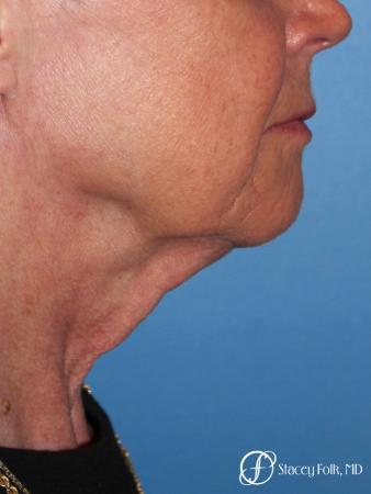 Denver Facial Rejuvenation Face lift, Fat Injections, and Laser Resurfacing 7131 - Before Image 1