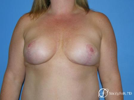 Denver Breast Reduction 4799 - After Image