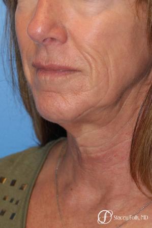 Denver Facial Rejuvenation Face lift, Fat Injections, and Laser Resurfacing 7132 - Before Image 2