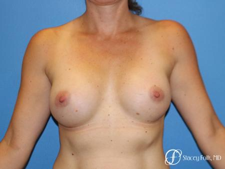 Denver Breast Augmentation 6611 - After Image