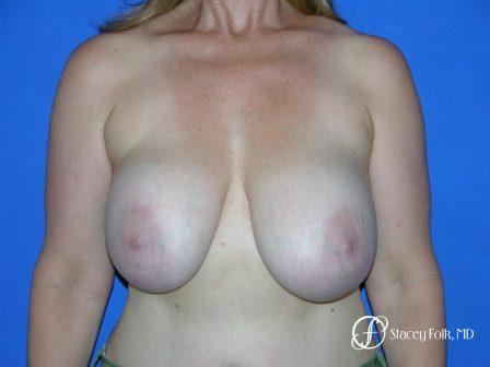 Denver Breast Revision 50 - Before Image 1