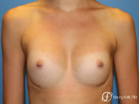 Denver Breast Augmentation with Sientra Breast Implants 9094 -  After Image 1