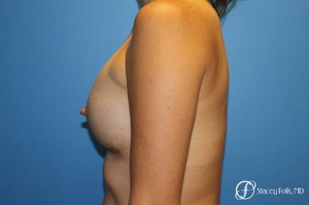 Denver Breast augmentation using textured anatomical implants 5849 -  After Image 3