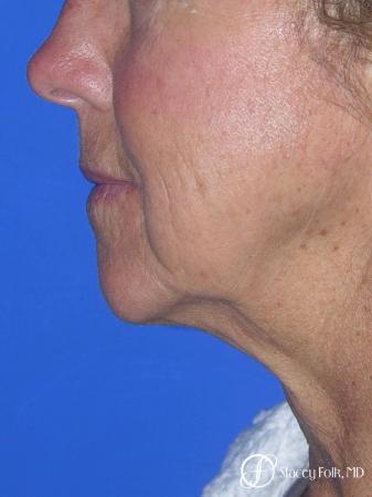 Denver Facial Rejuvenation Face Lift and Laser Resurfacing 7119 - Before Image 1