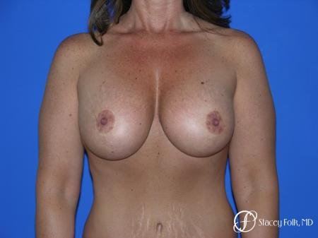 Denver Breast Lift and Augmentation 4560 - After Image