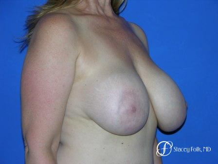 Denver Breast Revision 50 - Before and After Image 2