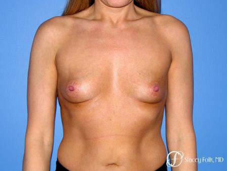 Denver Breast Augmentation 3626 - Before Image 1