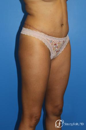 Tummy Tuck (Abdominoplasty) -  After Image 2