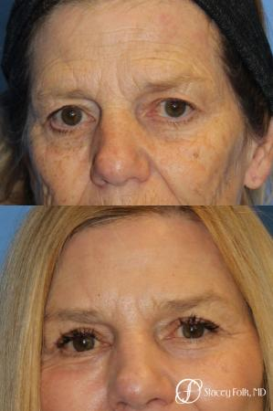 Denver Browlift and Blepharoplasty 11238 - Before Image