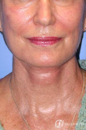 Denver Facial Rejuvenation Face Lift, Fat Injections, Laser Resurfacing 7116 -  After Image 3