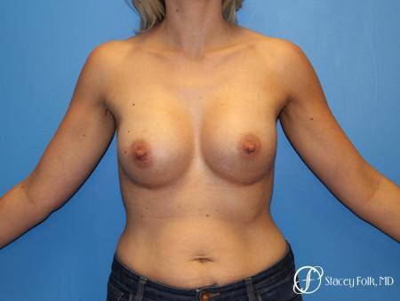 Denver Breast Augmentation 4816 -  After Image 1